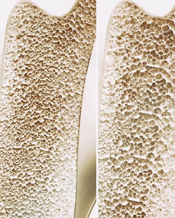 osteoporose ontkalking van beenderen
