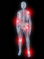 Artrose behandeling